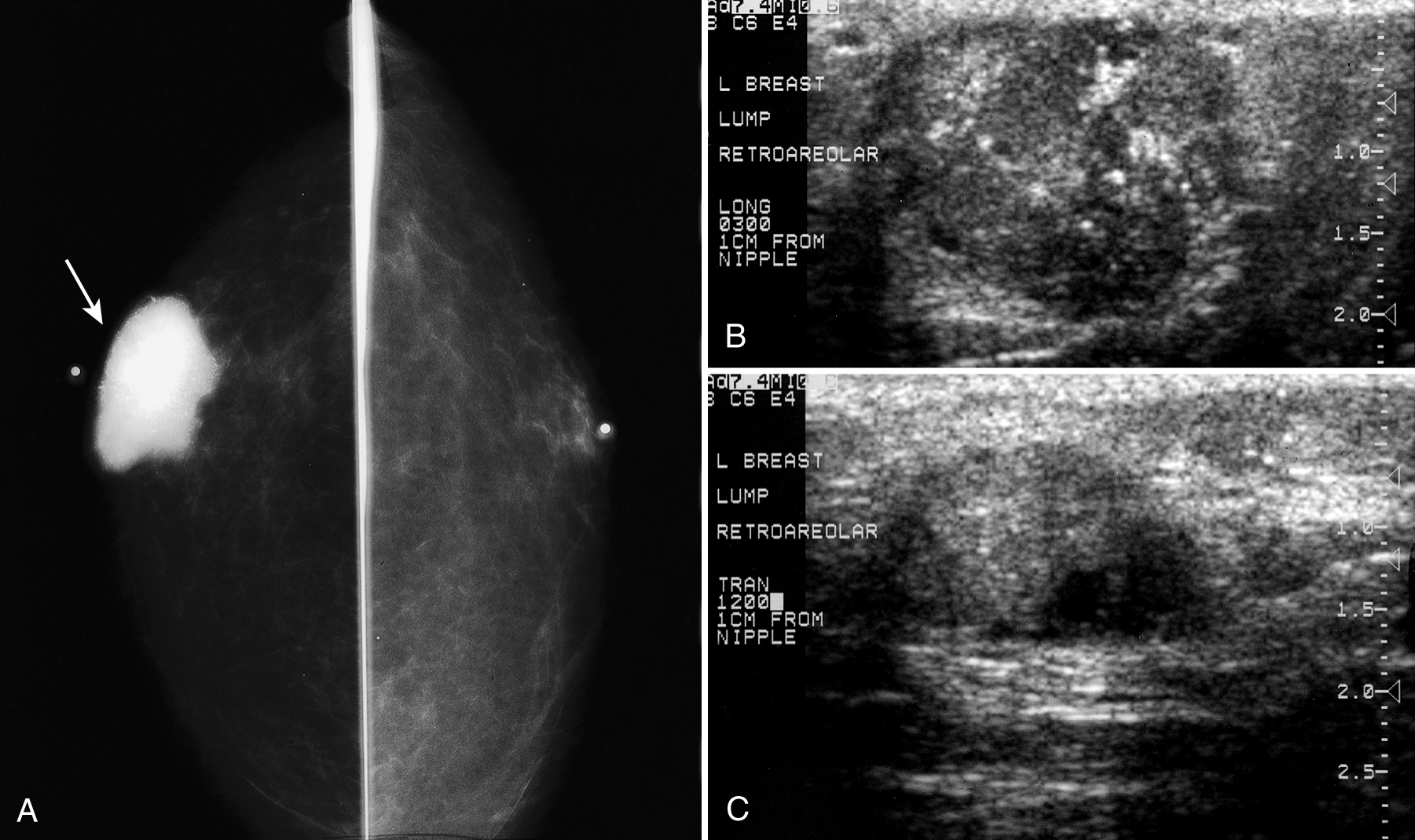 Invasive Ductal Carcinoma with Calcifications in Male Patient