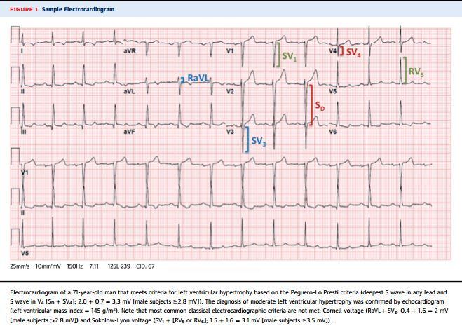 Electrocardiographic Criteria For The Diagnosis Of Left Ventricular